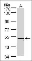 AP23077PU-N - ACVRL1 / ALK1