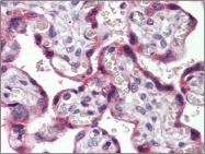 AP23074PU-N - CD194 / CCR4