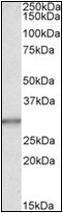 AP23069PU-N - Carbonic anhydrase 1
