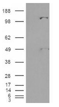 AP16749PU-N - Pyruvic carboxylase (PC)