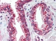AP22775PU-N - CD120a / TNFR1