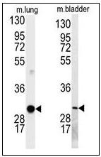 AP22779PU-N - Cyclin D1