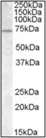 AP23068PU-N - FMR1 / FMRP