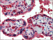 AP23064PU-N - Peroxiredoxin-1 / PRDX1
