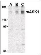 AP22866PU-N - MEKK5 / ASK1