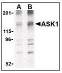 AP22867PU-N - MEKK5 / ASK1