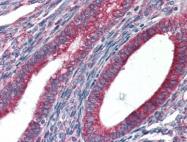 AP22872PU-N - Endoplasmin / HSP90B1 / TRA1