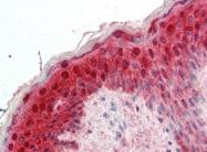AP22876SU-N - 14-3-3 protein sigma / SFN