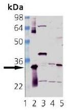 AP22888PU-N - Heme oxygenase 1 / HMOX1