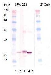 AP22889PU-N - Alpha-crystallin B chain / CRYA2