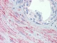 AP22894PU-N - Endoplasmin / HSP90B1 / TRA1