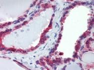 AP22895PU-N - Calnexin