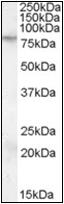 AP23051PU-N - FMR1 / FMRP