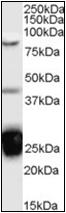 AP23048PU-N - TIA1