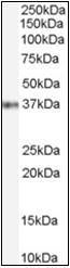 AP23045PU-N - GBX2