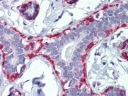 AP22906PU-N - Calponin-1