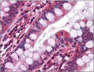 AP23043PU-N - Serotonin receptor 3A (HTR3A)