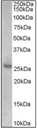 AP23041PU-N - CDKN1B / KIP1
