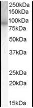AP23040PU-N - PDE4B