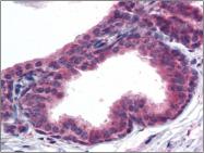 AP23033PU-N - AKT3 / PKB gamma