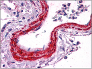 AP23031PU-N - ACTA2 / aortic smooth muscle Actin