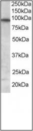 AP23030PU-N - FOXO3 / FKHRL1
