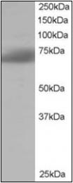 AP23028PU-N - SH3BP1