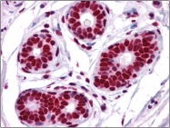 AP23026PU-N - TIF1-beta / TRIM28