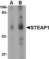 AP22946PU-N - STEAP / STEAP1