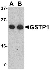AP22947PU-N - GSTP1 / GST3