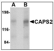 AP22948PU-N - Calcyphosin-2