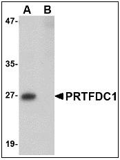 AP22950PU-N - PRTFDC1