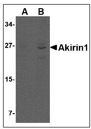 AP22955PU-N - AKIRIN1