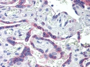 AP22965PU-N - Estrogen receptor beta