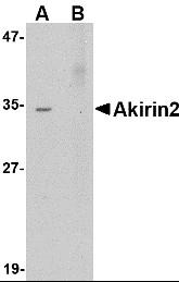 AP22976PU-N - AKIRIN2 / C6orf166