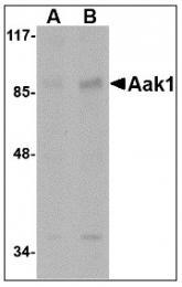 AP22978PU-N - AAK1