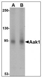 AP22987PU-N - AAK1