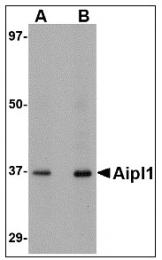 AP22992PU-N - AIPL1