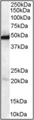 AP23025PU-N - NDRG1