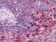 AP23024PU-N - Thioredoxin reductase 1 / TXNRD1