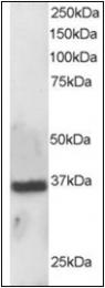 AP23022PU-N - APEX1 / REF-1