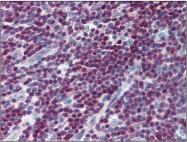 AP23020PU-N - CDKN1B / KIP1