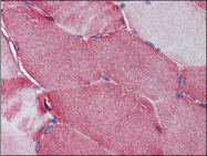 AP23013PU-N - Junctophilin-2 / JPH2