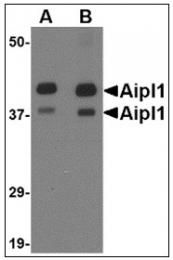 AP22998PU-N - AIPL1