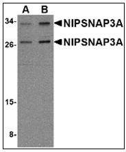 AP23003PU-N - NipSnap3A / NipSnap4