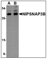 AP23006PU-N - NipSnap3B