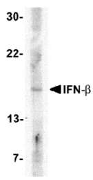AP05706PU-N - IFNB /  Interferon beta