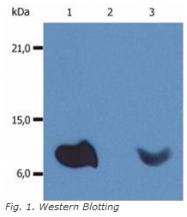 BM604PE - Beta-2-microglobulin