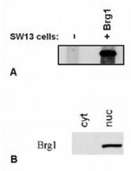 AM26021PU-N - SMARCA4 / BRG1