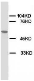 AP23320PU-N - Acetylcholine receptor alpha subunit
